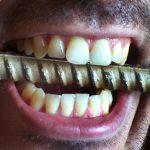 Tandenknarsen (Bruxisme): een gevaar voor je gebit!